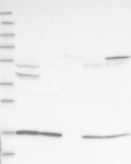 NBP1-85902 - ALS2CR12