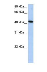 NBP1-56711 - ICA1L