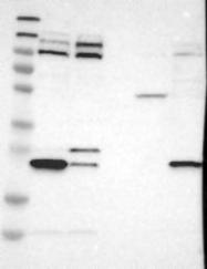 NBP1-90182 - TRAK2 / ALS2CR3