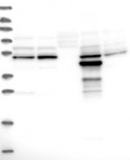 NBP1-82701 - AMDHD1