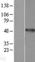 NBL1-07497 - AMDHD1 Lysate
