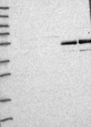 NBP1-84515 - AMDHD2 / CGI-14
