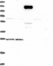 NBP1-84516 - AMDHD2 / CGI-14