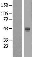 NBL1-07498 - AMDHD2 Lysate