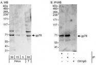 NBP1-49986 - AMFR / RNF45