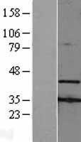 NBL1-07411 - AMID Lysate