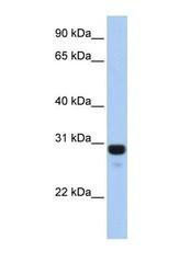 NBP1-56931 - AMN1