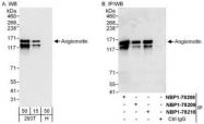 NBP1-78208 - Angiomotin