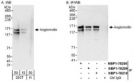 NBP1-78209 - Angiomotin