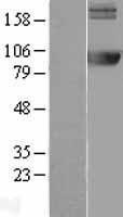 NBL1-07506 - AMPD2 Lysate