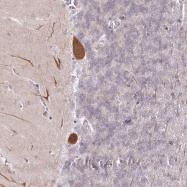 NBP1-80809 - Amelotin