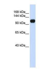 NBP1-70407 - ANKLE2 / KIAA0692