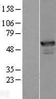 NBL1-07531 - ANKMY2 Lysate