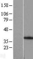 NBL1-07532 - ANKRA2 Lysate