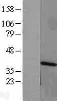NBL1-07533 - ANKRD1 Lysate