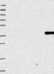 NBP1-91669 - ANKRD2