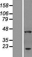 NBL1-07535 - ANKRD2 Lysate