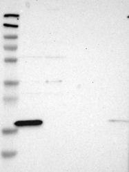 NBP1-81167 - ANKRD22