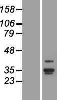 NBL1-07538 - ANKRD29 Lysate