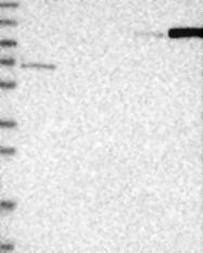 NBP1-80887 - ANKRD44