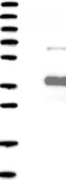 NBP1-85421 - ANKRD45