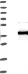 NBP1-85423 - ANKRD45