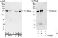NBP1-50032 - ANKRD50