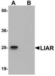 NBP1-77051 - ANKRD54 / LIAR
