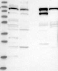 NBP1-90739 - Anoctamin-2
