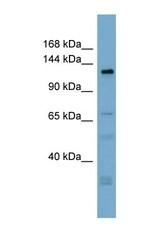 NBP1-70409 - ANO3 / TMEM16C