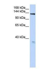 NBP1-70410 - ANO3 / TMEM16C