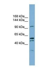 NBP1-59655 - Anoctamin-6