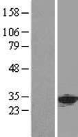 NBL1-07550 - ANP32A Lysate