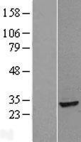 NBL1-07551 - ANP32B Lysate