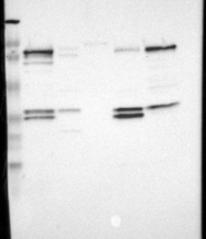 NBP1-81857 - AP1 complex subunit gamma-like 2