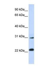 NBP1-55449 - AP3 complex subunit sigma-1
