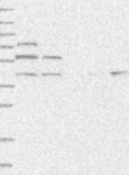 NBP1-88656 - AP4 complex subunit beta-1