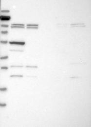 NBP1-84306 - APBA1 / MINT1