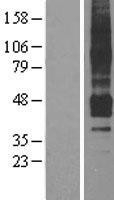 NBL1-07606 - APJ Receptor Lysate