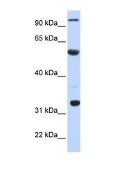 NBP1-57268 - APOBEC1