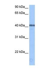 NBP1-57372 - APOBEC3F