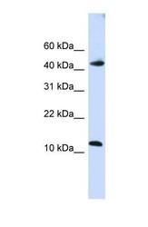 NBP1-57515 - APOBEC3F