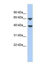 NBP1-56380 - APOBEC4