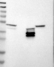 NBP1-89033 - Apolipoprotein L1 (Apo L1)