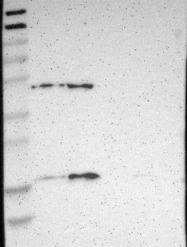 NBP1-84746 - Apolipoprotein O (Apo O)