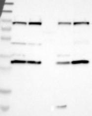 NBP1-90123 - APPL1 / DIP13A