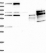 NBP1-90122 - PDS5B / APRIN