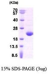 NBP1-40402 - APRT