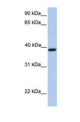NBP1-69625 - Aquaporin-10