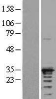 NBL1-07647 - ARD1A Lysate